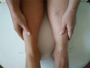 AcuNova, akupunktur, smertebehandling