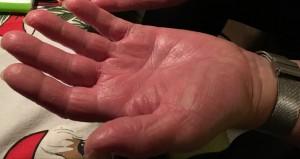 Hænder med eksem. De er varme, kløende med små blærer der brister, som gør at huden revner.