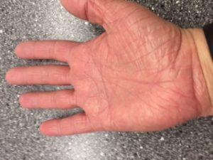 Efter 16 behandlinger med laser, 2-3 gange ugentligt.